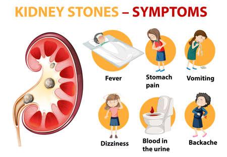Kidney stones symptoms cartoon style infographic illustration