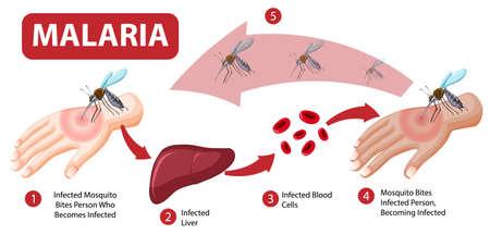 Malaria symptom information infographic illustration  イラスト・ベクター素材