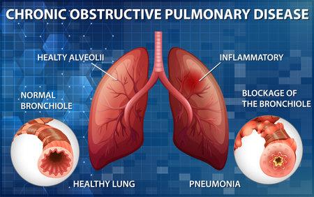 Chronic obstructive pulmonary disease illustration 向量圖像