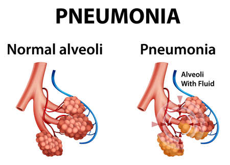Human anatomy showing pneumonia illustration 向量圖像