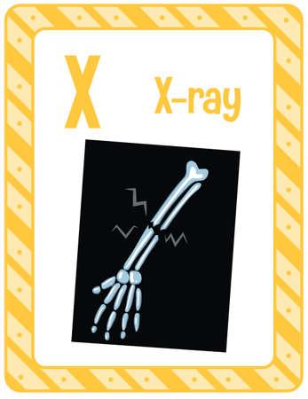 Alphabet flashcard with letter X for X-ray illustration Иллюстрация