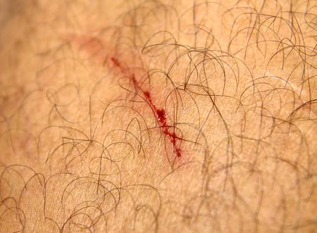 The wound on leg photo