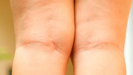 culo donna: gamba donna con la cellulite Archivio Fotografico