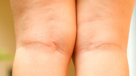 big ass: woman leg with cellulite