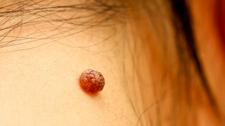 birthmark: Birthmark on skin. Mole closeup