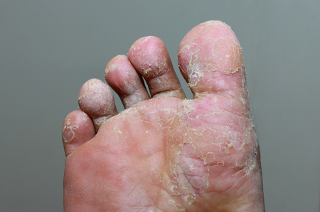 Athlete's foot - tinea pedis, fungal infection Imagens
