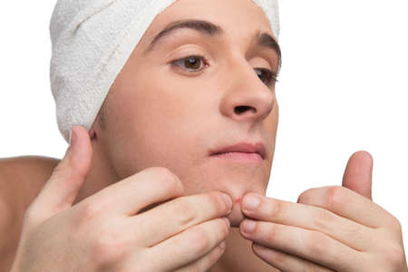 Young man is squeezing a pimple Stock Photo