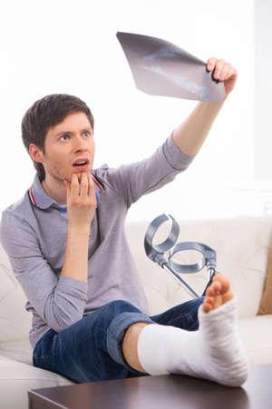 plaster leg cast: Man is looking on roentgen of his broken leg. Sitting on sofa