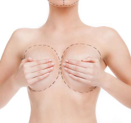 senos: La mejora del cuerpo. Imagen recortada del cuerpo de la mujer con marcas alrededor del pecho Foto de archivo