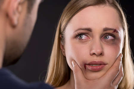 Close up of crying scared female face with bruise. Man holding woman face aggressively Stock Photo