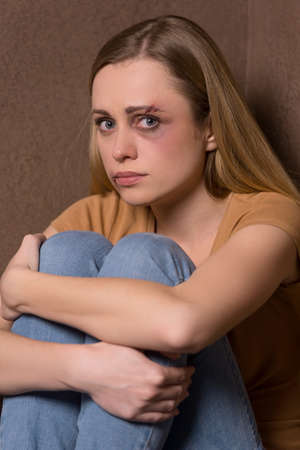 prostitution: Portrait of scared woman with bruise on face. Idea of human traffic and sexual violence