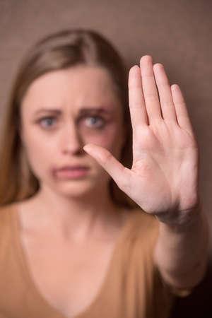 violencia intrafamiliar: Retrato de niña mostrando parada de tráfico humano y la humillación femenina. Tras haber derrotado a cara