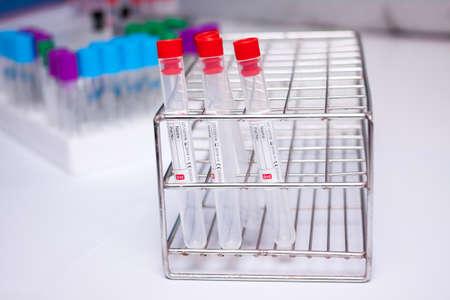 anticoagulant: Vaccum tube for testing in Lab Testing