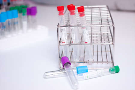 citrate: Vaccum tube for testing in Lab Testing
