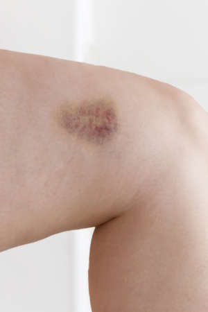 overthrown: painful knee injury with bruise