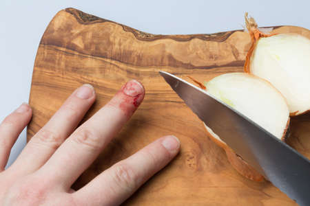 flesh surgery: finger with a deep cut bleeding showing knife accident