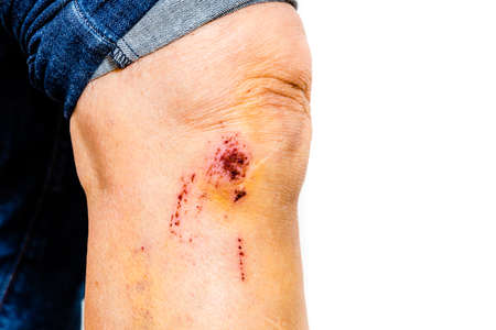 contusion: leg with some scrapes from a toppling