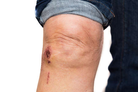 hematoma: leg with some scrapes from a toppling