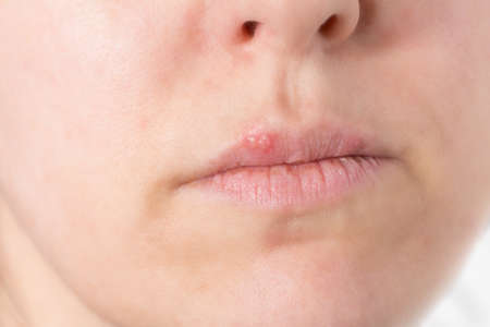virus infection type cold sore Stock Photo