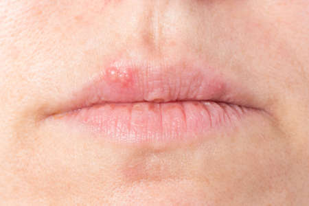 cold: lips of a woman has received cold sore infection