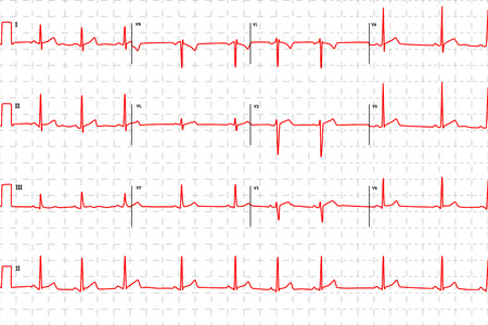 infarct: Typical human electrocardiogram, red graph with marks on white