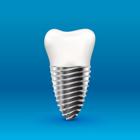 Realistic glossy human tooth implant with metallic screw 版權商用圖片 - 127520964