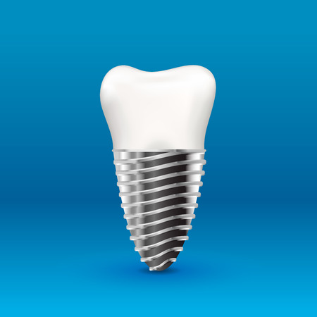 Realistic glossy human tooth implant with metallic screw