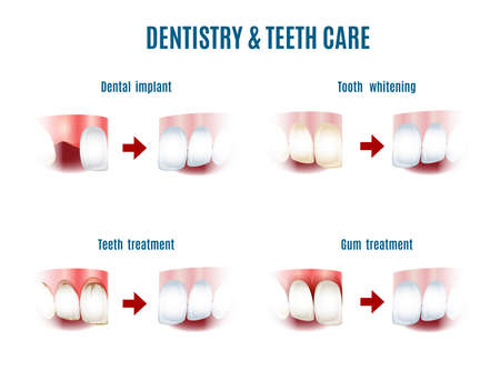 dental caries: Illustration of teeth care procedures. Iplants, whitening, gum and oral cavity. Free font Antonio used. Isolated on white Illustration