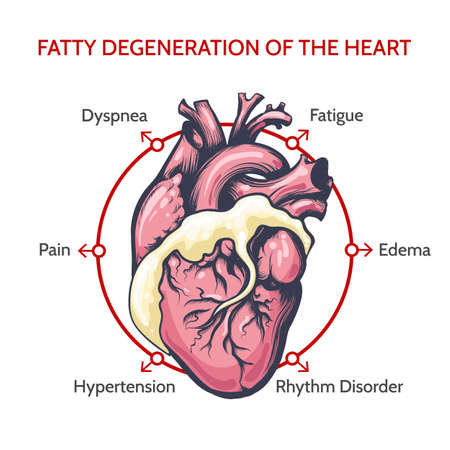 Fatty Degeneration of the Heart. Main Symptoms of desease. Medical cardiology vector illustration.