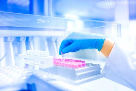 investigador cientifico: Científico mano que sostiene la muestra en el laboratorio especial, ambiente médico, detalles de hospital y herramientas