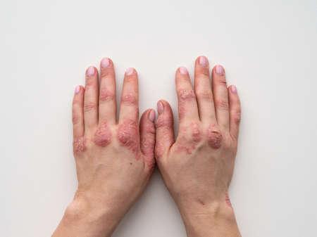 Schuppenflechte Haut. Nahaufnahme von Hautausschlag und Schuppung auf der Haut des Patienten. Das Konzept der Behandlung chronischer Krankheiten. Dermatologische Probleme. Harte und rissige Haut in den Händen einer Frau. Trockene Haut. Isoliert Standard-Bild