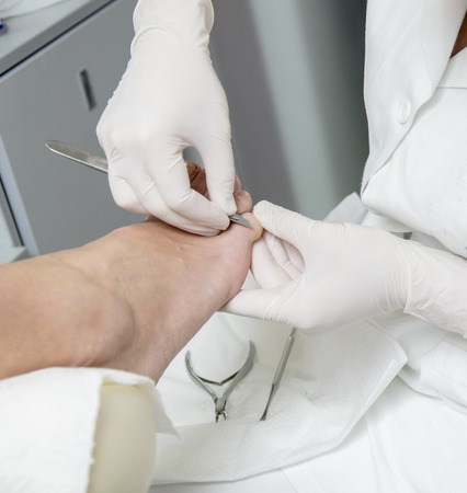foot doctor: Pedicure treatment Stock Photo