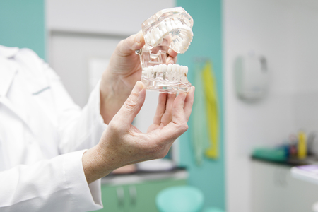 Female dentist holding in the hand dentures model
