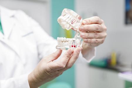 Female dentist holding in the hand dentures model