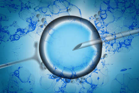 Assisted reproductive technology in fertility treatment concept