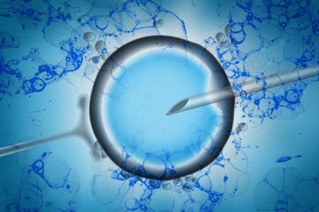 Tecnología de reproducción asistida en concepto de tratamiento de fertilidad