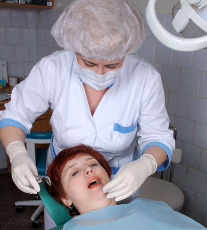 extract: doctor extract a tooth from woman