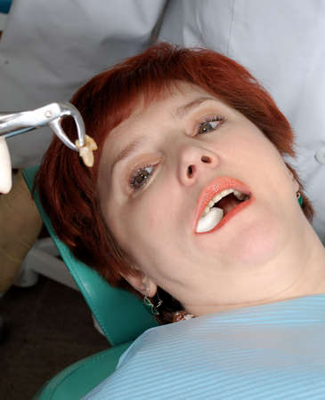 woman with open mouth look on her extract tooth photo