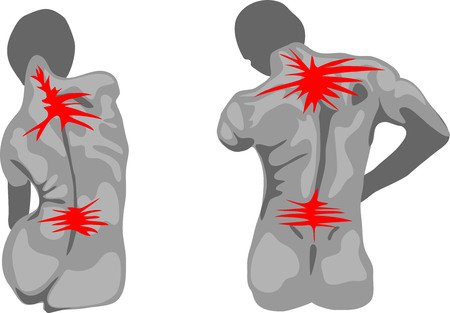 spasm: Painful female and male spine Illustration