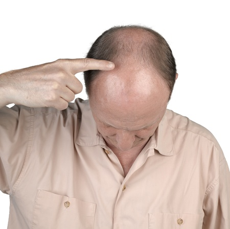 completely: Human hair loss - adult man hand pointing his bald head