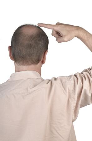 人間の毛髪の損失 - 彼の禿げ頭を指している成人男性の手