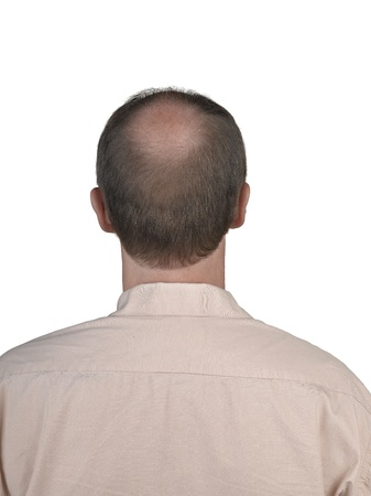 occiput: Human hair loss