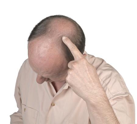 人間の髪の毛: 人間の毛髪の損失 - 彼の禿げ頭を指している成人男性の手