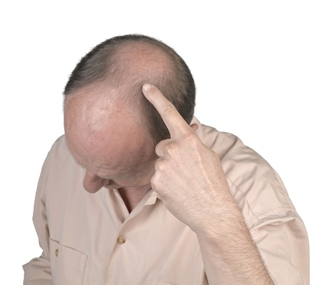 Human hair loss - adult man hand pointing his bald head photo
