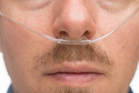 nasal: Nasal cannula for oxygen delivery on a bearded man