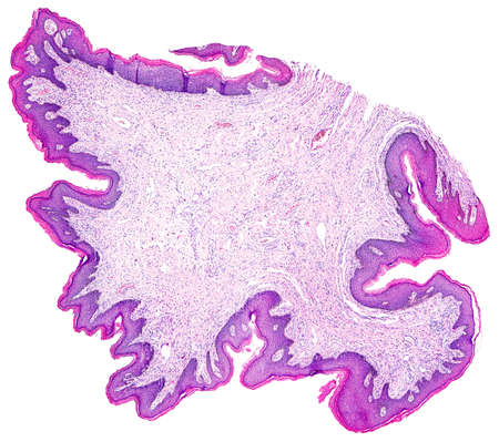 photomicrograph: Skin papilloma of a human, highly detailed panorama. Photomicrograph as seen under the microscope, 10x zoom.