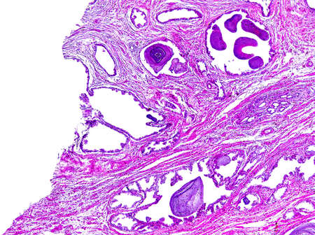 photomicrograph: Prostate hypertrophy of a human, highly detailed segment of panorama. Photomicrograph as seen under the microscope, 10x zoom. Stock Photo