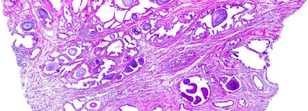 Prostate hypertrophy of a human, highly detailed panorama. Photomicrograph as seen under the microscope, 10x zoom.