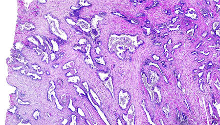 pathologist: Prostate cancer of a human, highly detailed segment of panorama. Photomicrograph as seen under the microscope, 10x zoom. Stock Photo