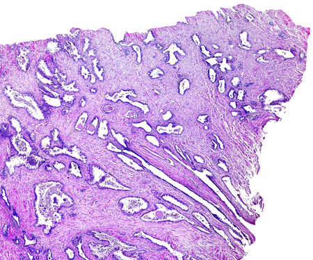 photomicrograph: Prostate cancer of a human, highly detailed segment of panorama. Photomicrograph as seen under the microscope, 10x zoom. Stock Photo